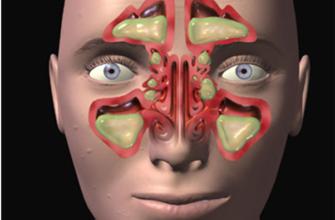 Характеристика одонтогенных и неодонтогенных воспалительных процессов челюстно-лицевой области у детей, проходивших лечение в челюстно-лицевом стационаре – тема научной статьи по клинической медицине читайте бесплатно текст научно-исследовательской работы в электронной библиотеке КиберЛенинка