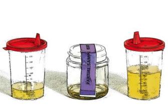 Как проходит процедура допинг-контроля - Диагностер