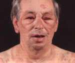 Реферат: Аллергическая реакция немедленного типа - анафилактический шок. Скачать бесплатно и без регистрации