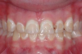 Деминерализация эмали зуба | Стоматология Рузана