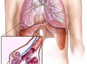 Болезни органов дыхания и их предупреждение — урок. Биология, Человек (8 класс).