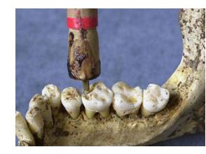 Развитие ортопедической стоматологии
