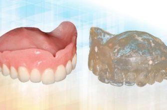 Цифровой протокол дупликации съемного протеза (2239) - Ортопедия - Новости и статьи по стоматологии - Профессиональный стоматологический портал (сайт) «Клуб стоматологов»