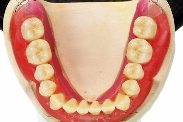 Способ изготовления полного съёмного протеза челюсти – тема научной статьи по клинической медицине читайте бесплатно текст научно-исследовательской работы в электронной библиотеке КиберЛенинка