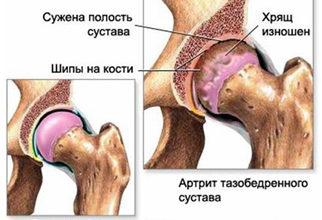 Артроз тазобедренных суставов (коксартроз): причины, симптомы и лечение в статье эндокринолога Бабинцева М. Ю.