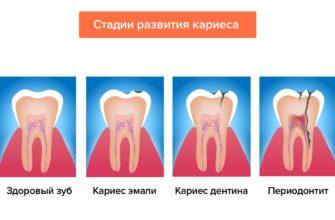 Лечение переломов костей конечностей - Центр травматологии и ортопедии ГБ 41 г. Екатеринбург
