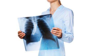 Рентгенология в стоматологии