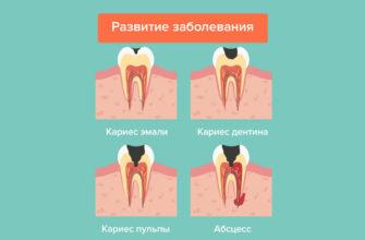 Лечение пульпита – подготовка, методы, этапы, удаление нерва зуба при лечении пульпита